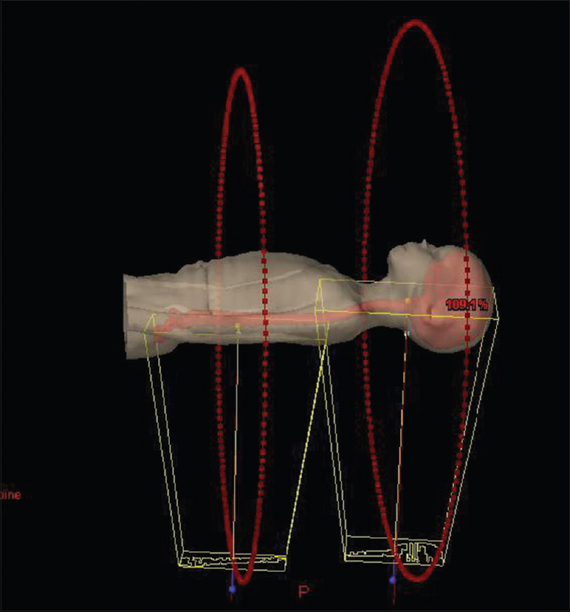Figure 2: Collimator and beam setup for volumetric-modulated arc therapy-craniospinal irradiation